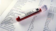 Los análisis de sangre  en triatletas